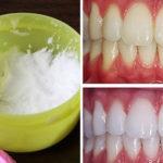 Astuce nettoyage dents : solution naturelle pour blanchir les dents