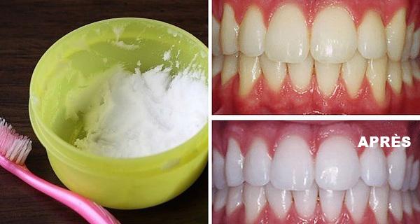 Astuce nettoyage dents
