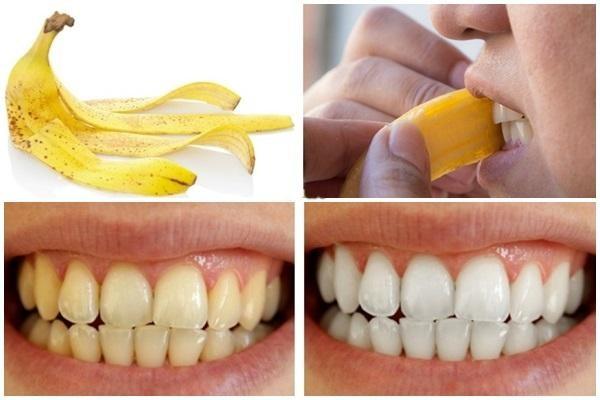 banane dent