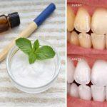 Fabriquer son dentifrice naturel fait maison